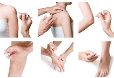 Joint injections provided by Arthritis & Rheumatology Center
